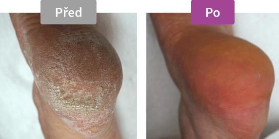 Footlogix Callus Softener (18) - Změkčovač mozolů - před / po
