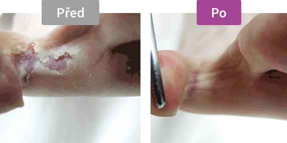 Footlogix Peeling Skin Formula (7) - Pěna pro loupající se pokožku, 125 ml - před. / po