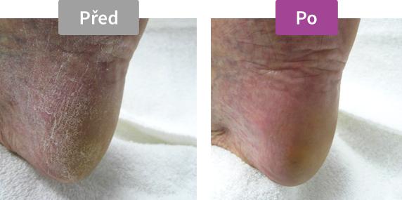 Footlogix DD Cream Mousse Formula (1) - DD krém s dvojitou ochranou, 125 ml - před / po