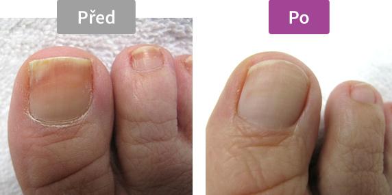 Footlogix - Protiplísňový sprej na nehty - před/po