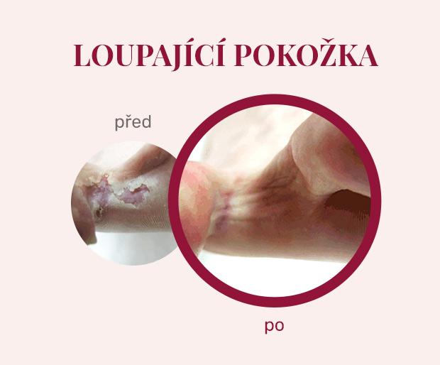 Footlogix - léčba loupající pokožky